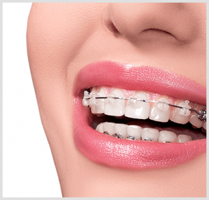 Excellent Orthodontics Terminology Orthodontist In San Francisco Ca Wiring 101 Orsalhahutechinfo