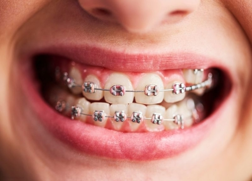 Traditional Braces for Your Teeth | Orthodontist in San ...